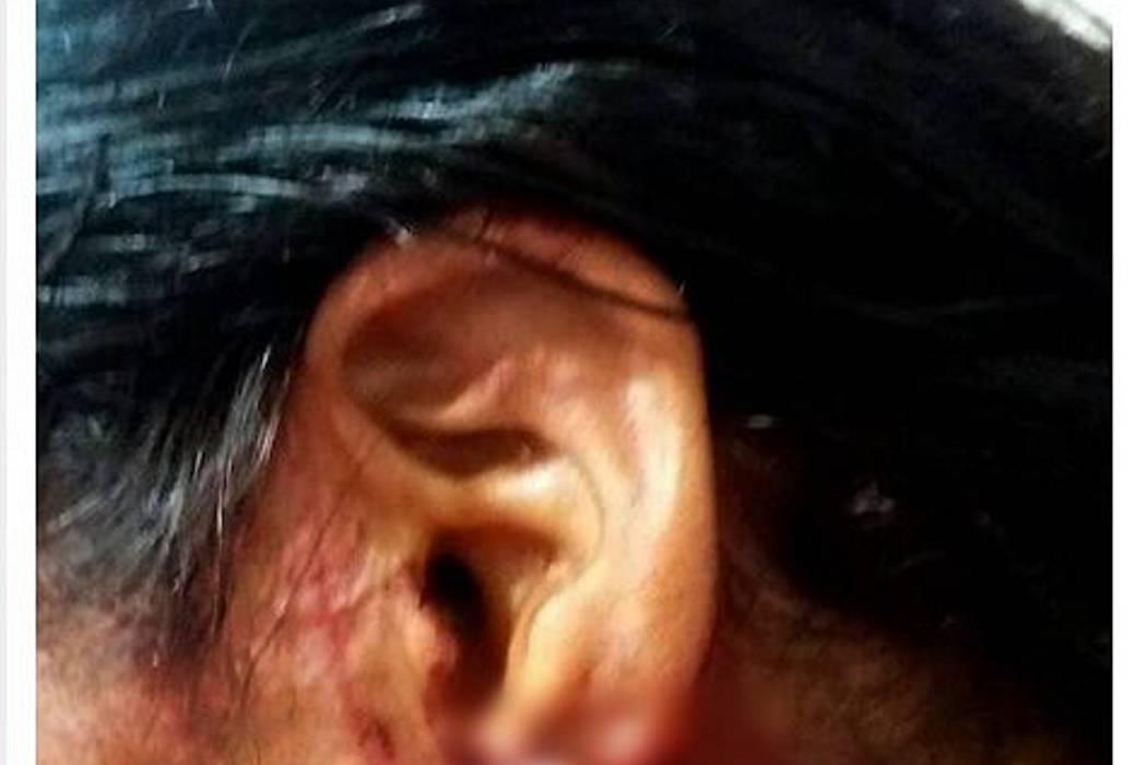 En un ataque de celos, mujer le arrancó la oreja a otra en Santander