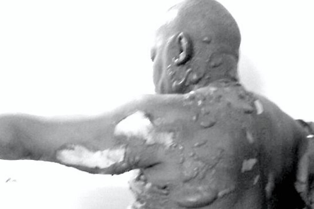 Alcalde de El Atrato, Chocó, fue quemado en altercado familiar