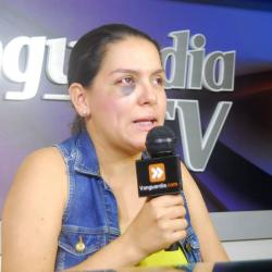 Mujer denuncia brutal golpiza que le propinó su expareja en Floridablanca