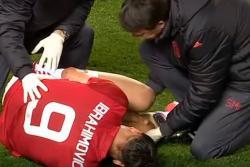 Vea la impresionante lesión que sufrió el futbolista Zlatan Ibrahimovic