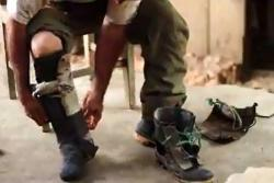 Este santandereano pide ayuda para volver a caminar