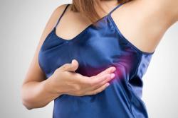 Conozca el paso a paso del autoexamen de seno para detectar cáncer