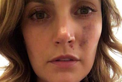 La actriz aseguró en un video que tuvo heridas en las piernas y en un brazo.