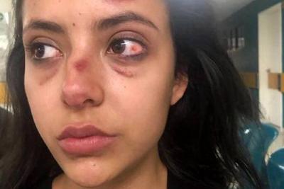Este es el video de la Modelo que denuncia que fue golpeada por su suegra