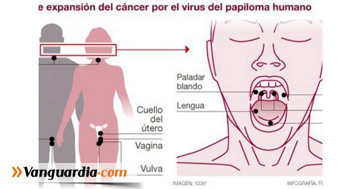 El herpes labial se puede transmitir a los genitales