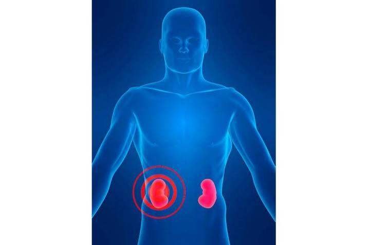 La micción frecuente causa más de 50 msle