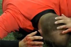 Video registró momento en que árbitro recibió un botellazo en la Liga Europa